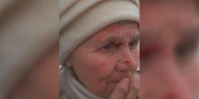 Пермский кондуктор до крови расцарапала лицо пенсионерке