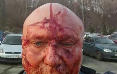 В Киеве проломили голову догхантеру. 18+ - «Украина»