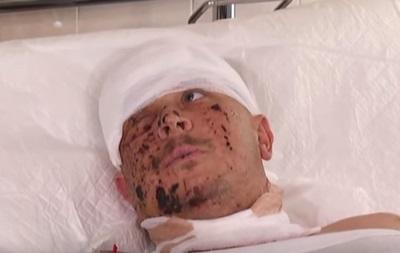 Выживший боец рассказал об обстреле КрАЗа под Гранитным - (видео)