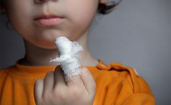Как лечить небольшую рану, чтобы не было грубого рубца - «Здоровье»